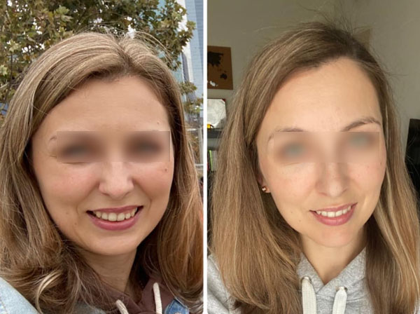 Before and After Results - hapinss brands